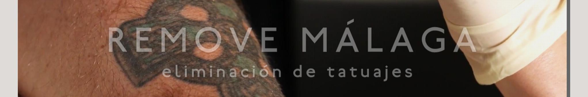 Eliminación Tatuajes Málaga - Borrar Tatuajes
