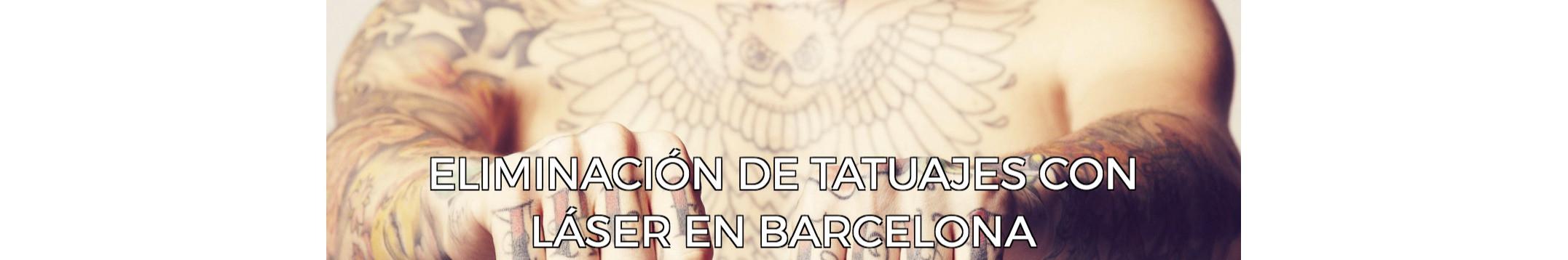 Eliminación de tatuajes en Barcelona